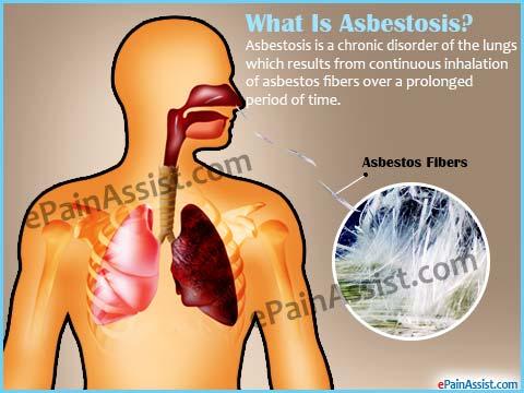 what-asbestosis